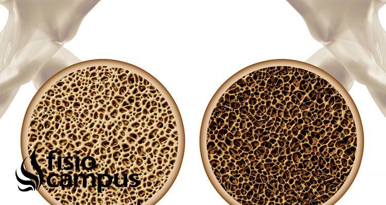 Osteoporosis: Causas, síntomas y tratamiento dietético y nutricional