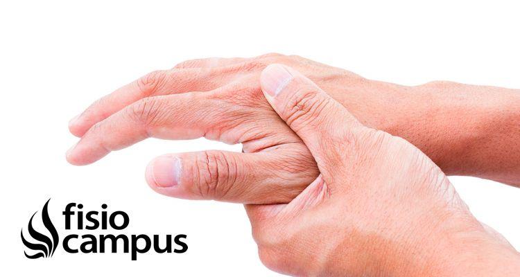 Artritis reumatoide ¿Qué es? ¿Cómo tratarla?