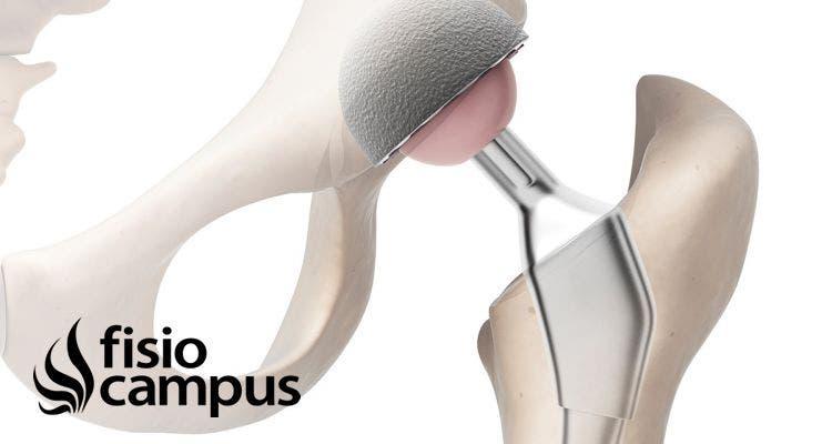 Prótesis de cadera. Consejos y rehabilitación.