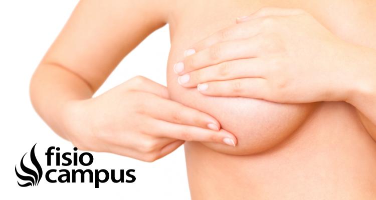 Cáncer de mama. Papel de la fisioterapia en su tratamiento.