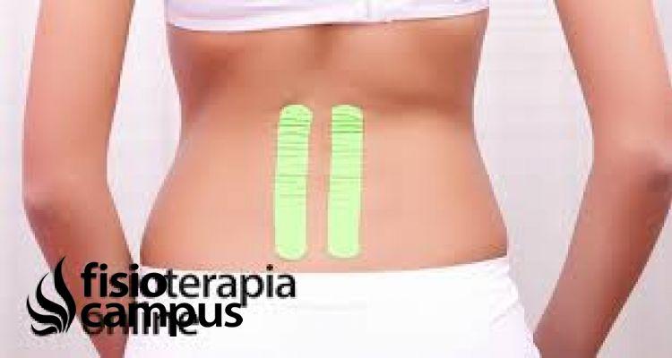 Vendaje neuromuscular para el alivio del dolor menstrual moderado