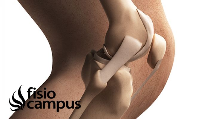 Síndrome femoropatelar. Causas, síntomas, diagnóstico y tratamiento