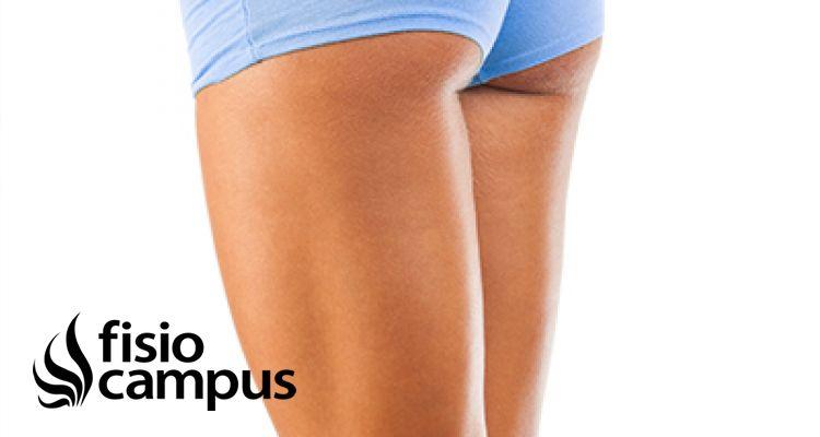 10 consejos de una fisioterapeuta para evitar la celulitis
