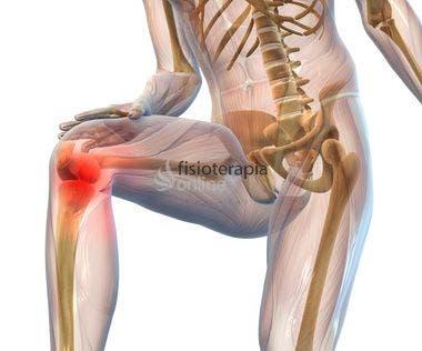 Tratamiento fisioterápico de la gonartrosis o artrosis de rodilla ...