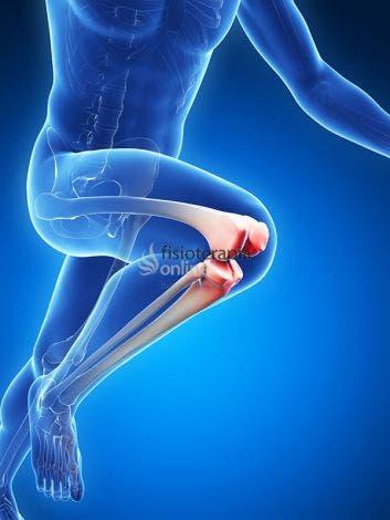 ¿qué es una lesión de menisco  fisioterapia online