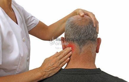 Cefalea por neuralgia de Arnold. Causas y tratamiento | FisioOnline