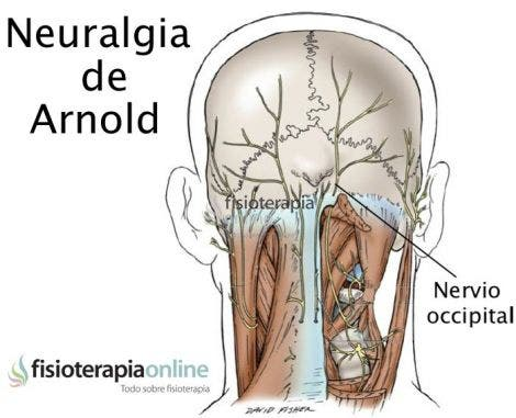 Suboccipital nerve  definition of suboccipital nerve by