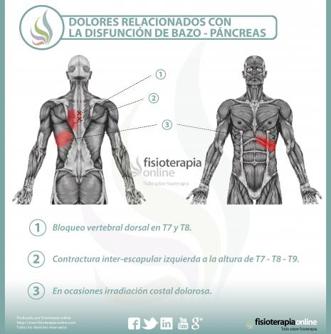 Relación entre el páncreas y el dolor de espalda. | Fisioterapia Online