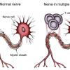 Esclerosis Múltiple, una enfermedad caprichosa, enigmática e impredecible