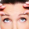 Fisioestética. Arrugas de expresión y cuidados del pecho