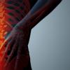 Estenosis foraminal ¿Cómo se puede movilizar la columna cuando hay dolor lumbar?