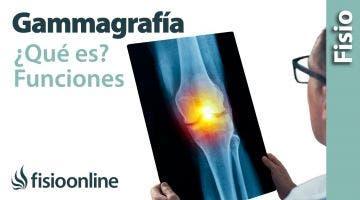 Gammagrafía, que es y cómo funciona.