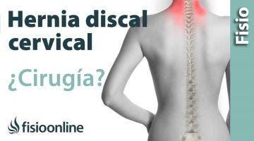 hernia discal cervical: cuándo optar por la cirugía u operación quirúrgica