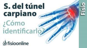 Cómo saber si tienes el síndrome del túnel carpiano