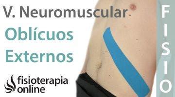 Cómo tonificar los músculos oblicuos externos con vendaje neuromuscular