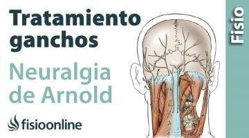Tratamiento de fisioterapia con fibrolisis o ganchos para la neuralgia de Arnold
