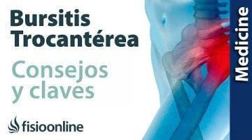 Trocanteritis o bursitis trocantérea: claves para entenderla