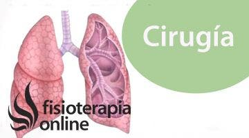 Cirugías Tóraco abdominales  Qué son y cómo prepararse para la cirugía