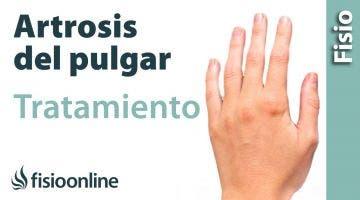Qué es la rizartrosis  o artrosis trapeciometacarpiana del pulgar. Causas y tratamiento