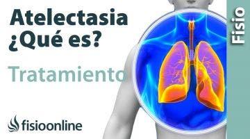 Atelectasia  Causas, síntomas y tratamiento desde la visión de la fisioterapia respiratoria