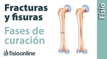 43# ¿Qué es una fractura y una fisura y cuales son sus fases de curación?
