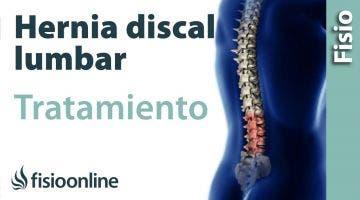 Hernia discal lumbar. Tratamiento con ejercicios, auto masajes y estiramientos