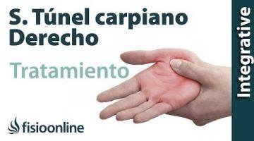 Tratamiento del síndrome de túnel carpiano derecho