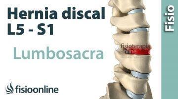 Hernia discal lumbar entre la L5 y S1 o quinta vértebra lumbar y el sacro