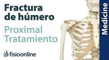 Fracturas de húmero proximal. Tratamiento quirúrgico y conservador