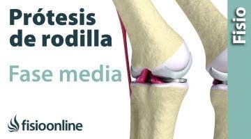 Rehabilitación de Prótesis de Rodilla - Segunda Fase
