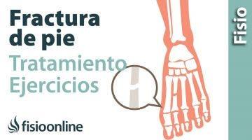 Rehabilitacion de fracturas del pie con ejercicios, auto masajes y estiramientos