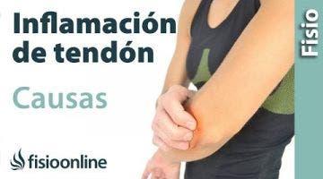 Tendinitis - Como sucede y Cuales son sus causas.