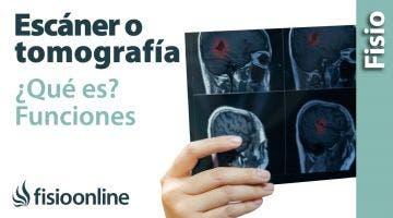 Escáner o tomografía. Qué es y cómo funciona