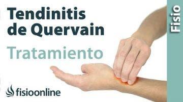 Tendinitis de Quervain. Tratamiento con ejercicios, auto-masajes y estiramientos