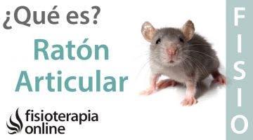 Ratón articular - Qué es, causas y consecuencias