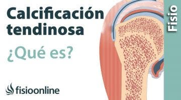 38 Calcificación tendinosa. Qué es, causas, síntomas y tratamiento.