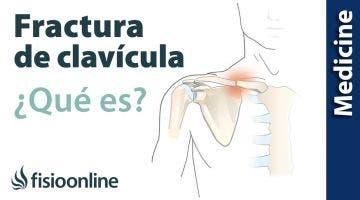 Tratamiento para la fractura de clavícula