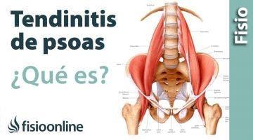 13# Tendinitis de psoas iliaco o psoitis. Qué es, causas, síntomas y tratamiento.
