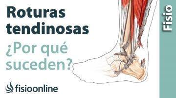 Roturas tendinosas - Como suceden y cuales son sus causas.