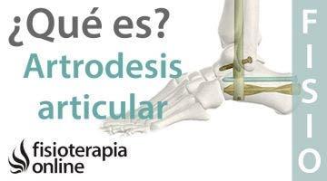 Artrodesis articular. Qué es, cuando y cómo se realiza