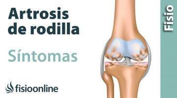 ¿Cómo entender y minimizar los síntomas de la Artrosis de rodilla?