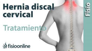 Hernia discal cervical. Tratamiento con ejercicios, auto masajes y estiramientos