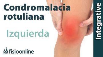 Tratamiento de la condromalacia rotuliana izquierdo