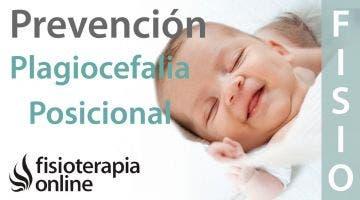 Plagiocefalia posicional o deformacional - ¿Qué es?
