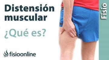 Distensión muscular o ligamentosa - Qué es, cómo sucede y cuáles son sus características