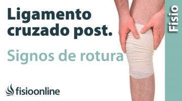 Lesión del ligamento cruzado posterior. Signos y síntomas de la rotura