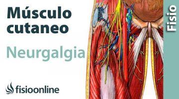 16# Neuralgia del nervio músculocutaneo. Qué es, causas, síntomas y tratamiento.