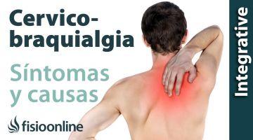 ¿Qué es la cérvico-braquialgia o dolor cervical irradiado y cuáles son sus causas y síntomas?