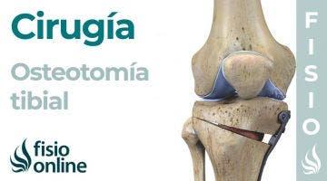 OSTEOTOMÍA TIBIAL: Técnica de la artrosis de rodilla sin prótesis