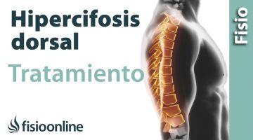 Cifósis dorsal. Tratamiento medianta ejercicios auto masajes y estiramientos